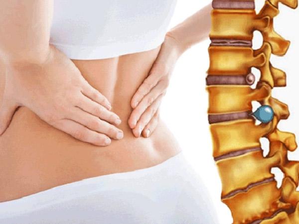 Phương pháp điều trị thoái hóa cột sống