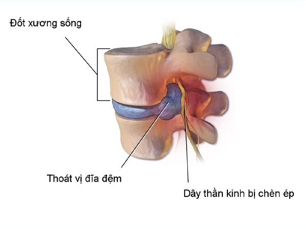 Những biện pháp chẩn đoán bệnh lý thoát vị đĩa đệm